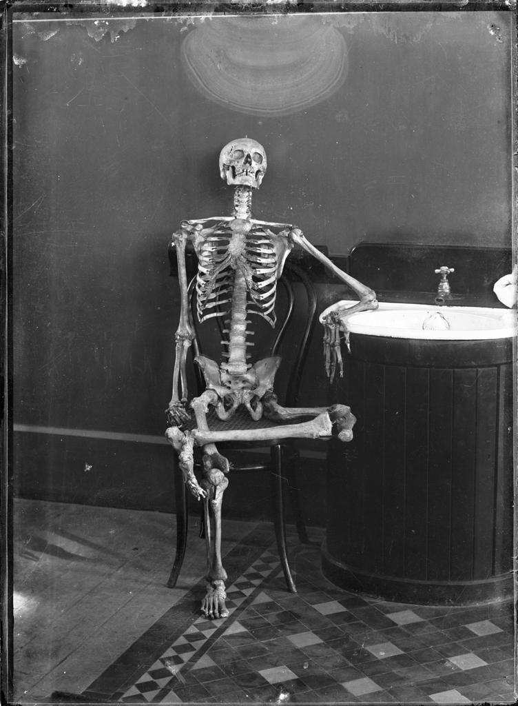 boredom skeleton